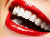 fehér fogak 2 (1)